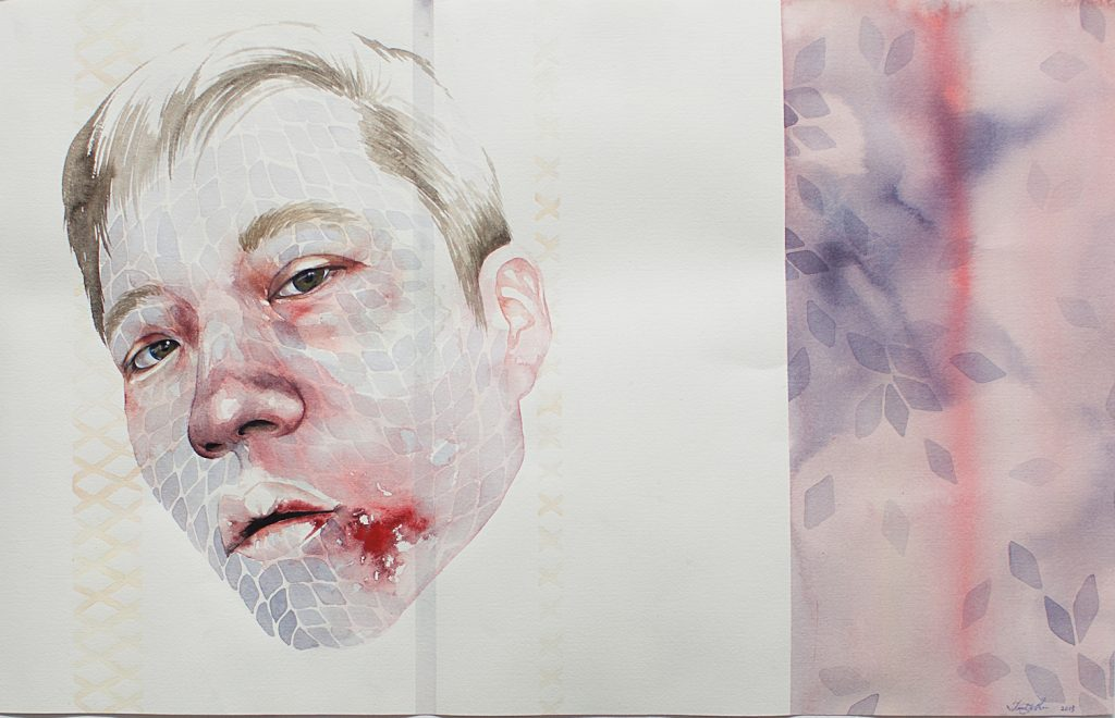Self portrait with busted lip, 2013